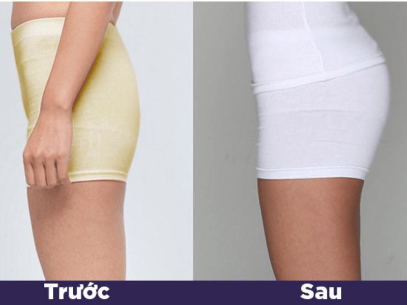 Hình ảnh trước và sau khi tiêm filler vòng 3