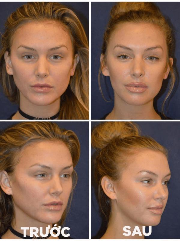 Hình ảnh trước và sau khi tiêm filler thon gọn mặt