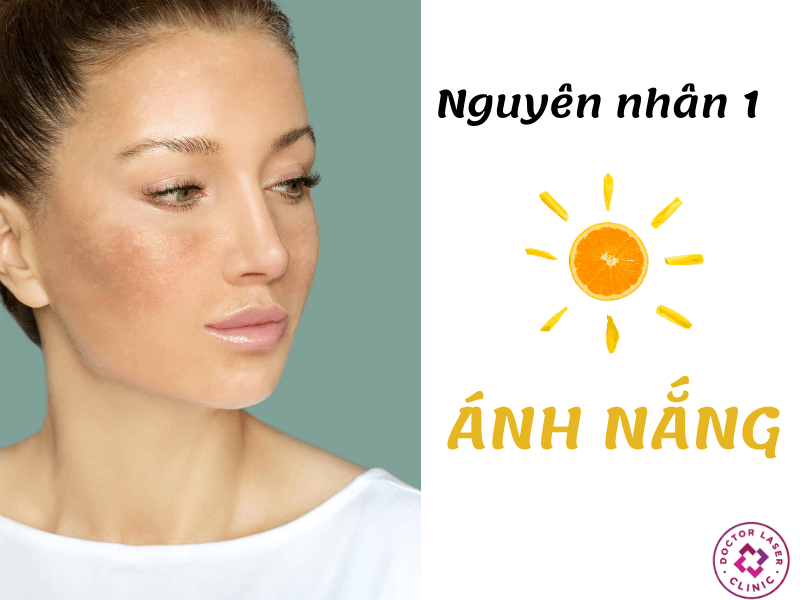 Tia UV của ánh nắng cũng là nguyên nhân bị nám