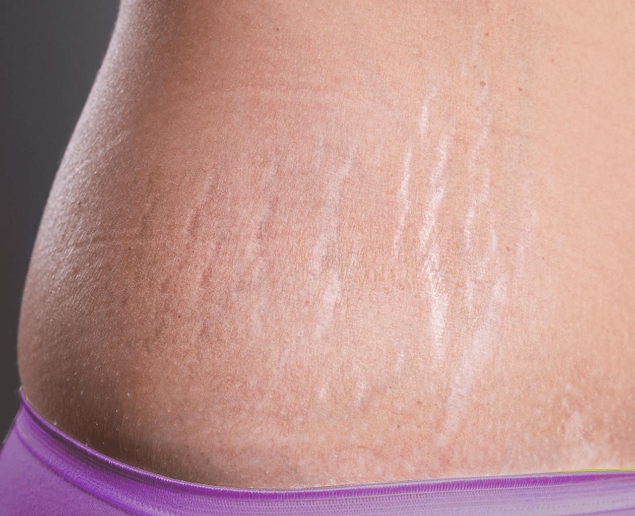 Phương pháp điều trị rạn da hiệu quả nhất hiện nay