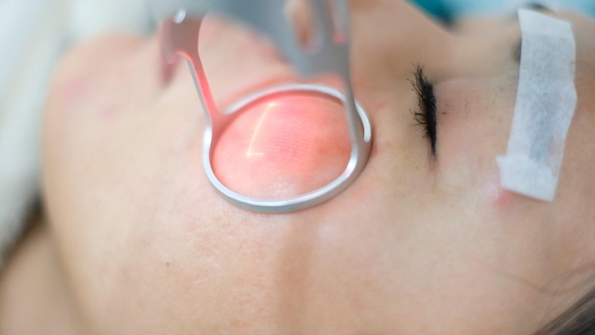 Điều trị lỗ chân lông vĩnh viễn hiệu quả lên tới 90%