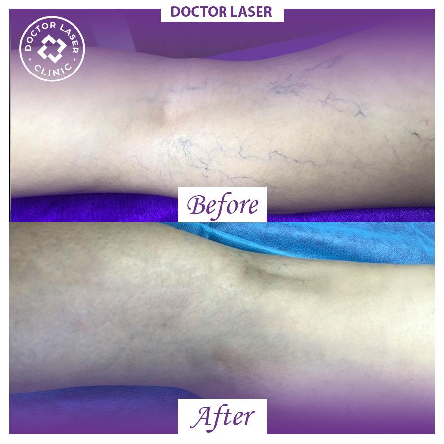 Ảnh khách hàng bị giãn mạch và sau khi điều trị của phòng khám da liễu Doctor Laser