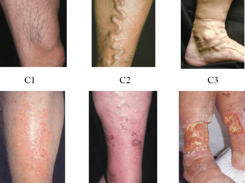 Hình ảnh giãn mạch ở chân