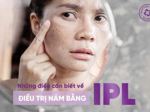 NHỮNG ĐIỀU CẦN BIẾT VỀ ĐIỀU TRỊ NÁM BẰNG IPL