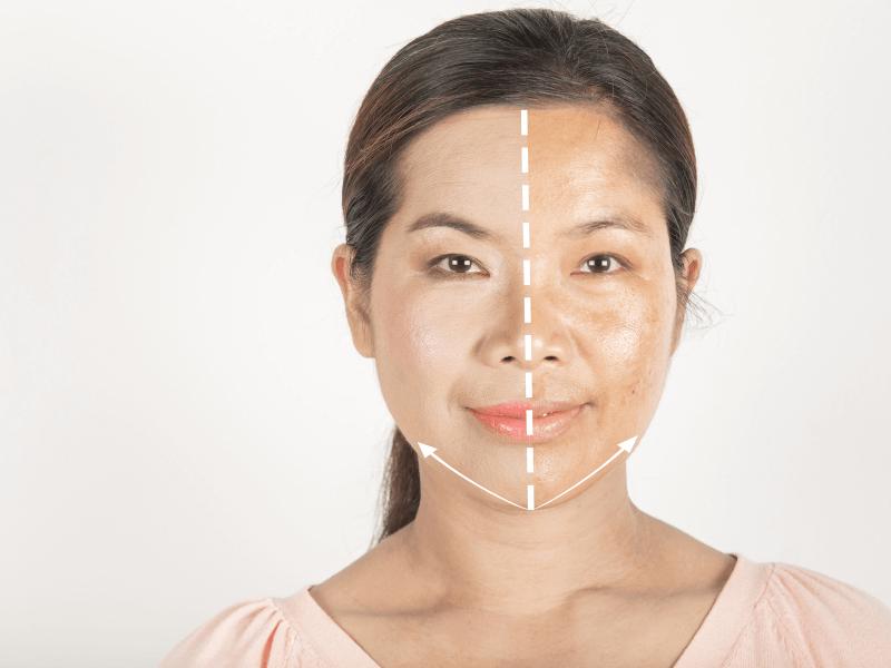 Hiệu quả từ việc điều trị nám bằng tia laser