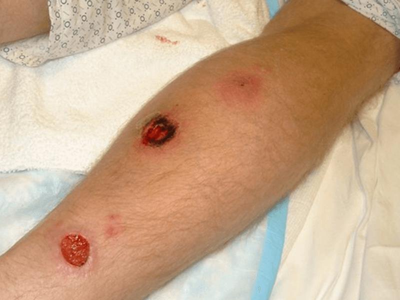 Giãn tĩnh mạch chân có nguy hiểm
