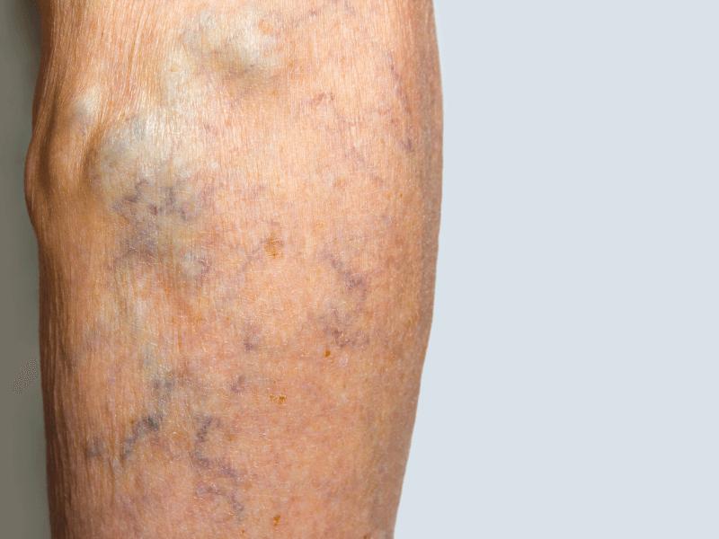 Người bị giãn tĩnh mạch chân có thể đi bộ không?